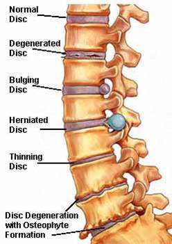 Arthritis | Chiropractor Gold Coast | Massage | Hinterland Chiropractic